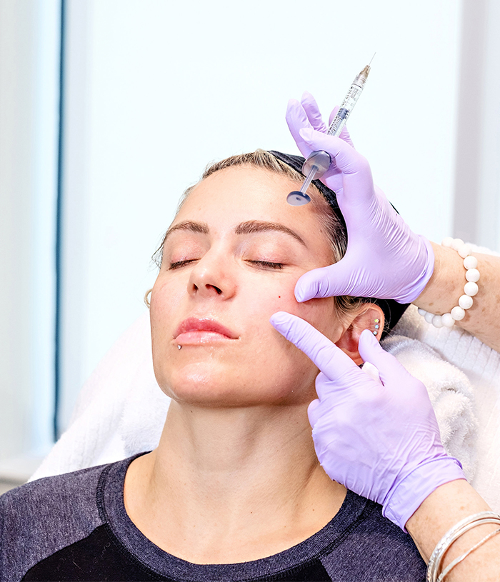 Juverderm procedure at Anderson Aesthetics